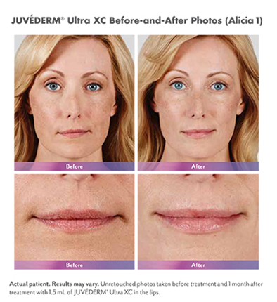 Pricing for Facial Fillers in Leesburg and Ashburn